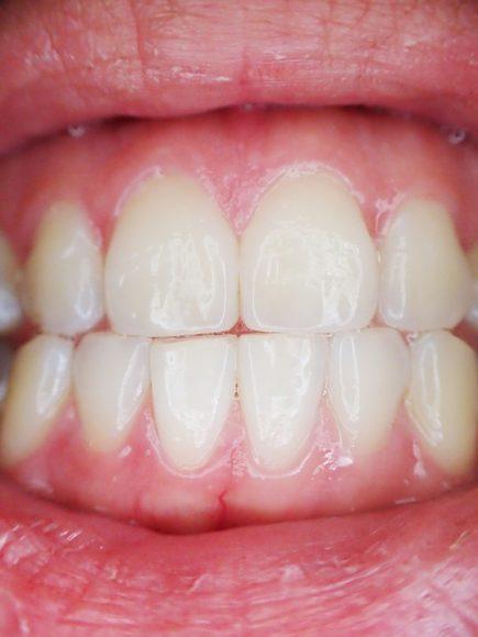 Friska tänder i en mun