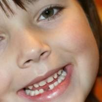 Liten flicka som tappat en tand ler
