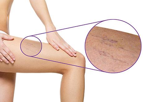Salva mot ytliga blodkärl på benen