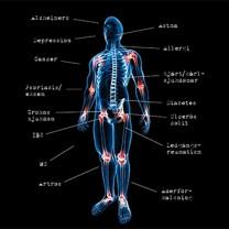 Skelett med sjukdomar