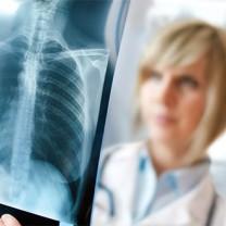 kvinna bakom röntgenplåt