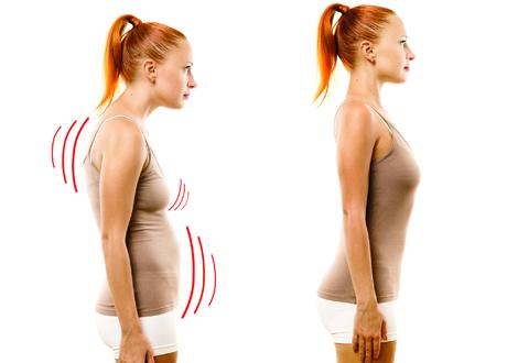 Ung kvinna med dålig hållning resp god hållning splitbild