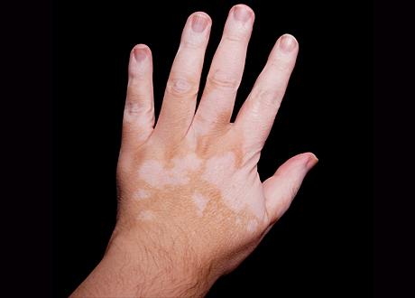 hand med vitiligo