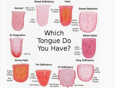 tungans sjukdomar