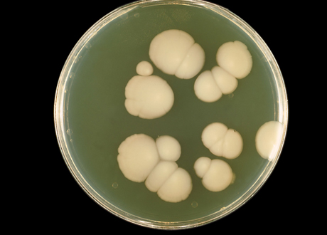 Candida albicans  i mikroskop. Foto: William Kaplan, Centers for Disease Control and Prevention's Public Health Image Library (PHIL). Wikimedia Commons