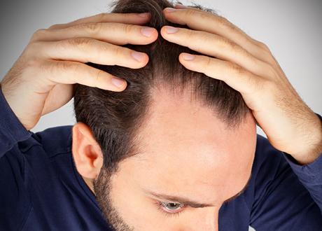tappar hår brist
