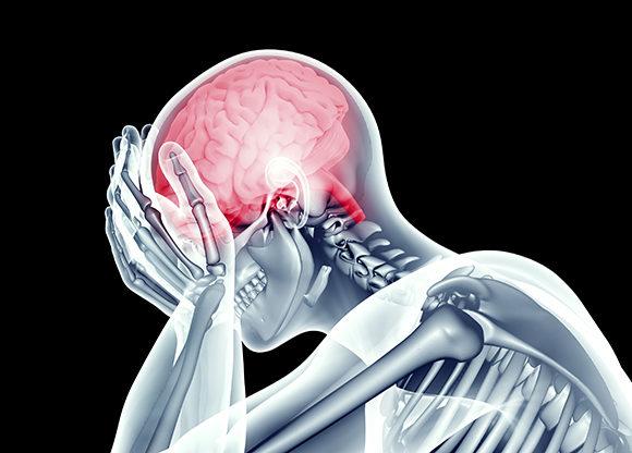 hur känns en hjärnblödning