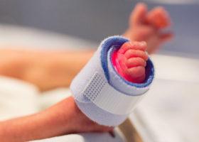 Foten hos för tidigt fött barn
