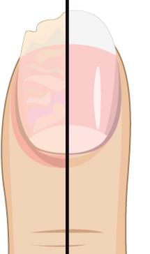 sprucken skivad nagel