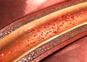 Blodkärl i genomskärning