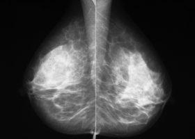 bröstvävnad röntgen