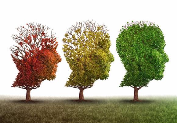 hjärnor i form av träd