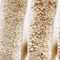skelettdelar