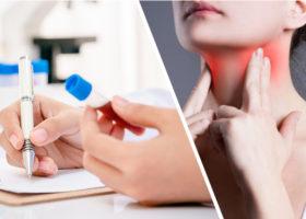 Testa dina sköldkörtelhormoner
