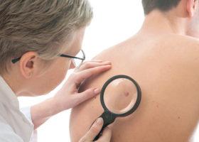 läkare undersöker ett födelsemärke