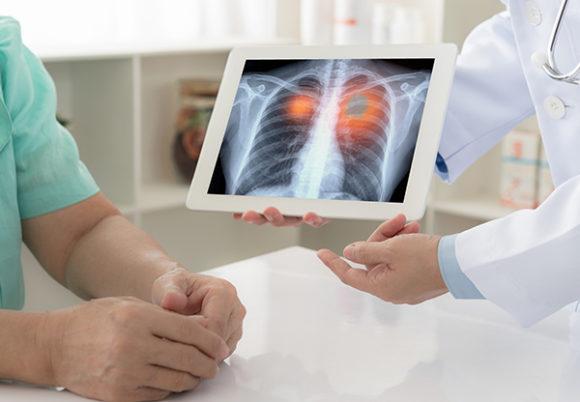 doktor visar röntgenbild på lungcancer