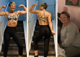 Kvinna före och efter viktnedgång